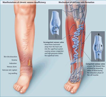 enlarged varicose veins